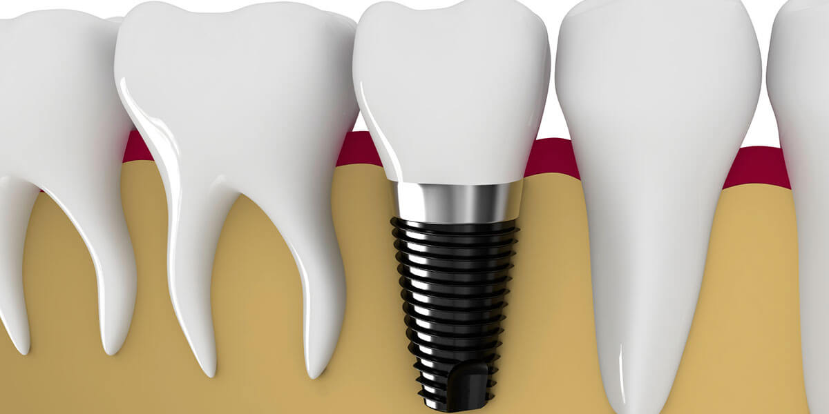 Dental Implants in Framingham, MA